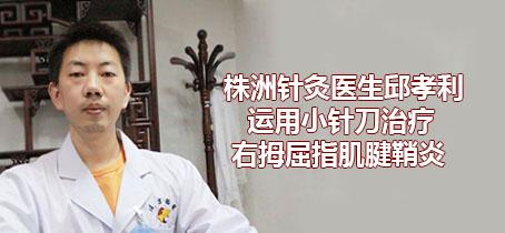 株洲针灸医生邱孝利运用小针刀治疗右拇屈指肌腱鞘炎